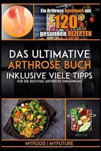 Ultimative Arthrose Buch